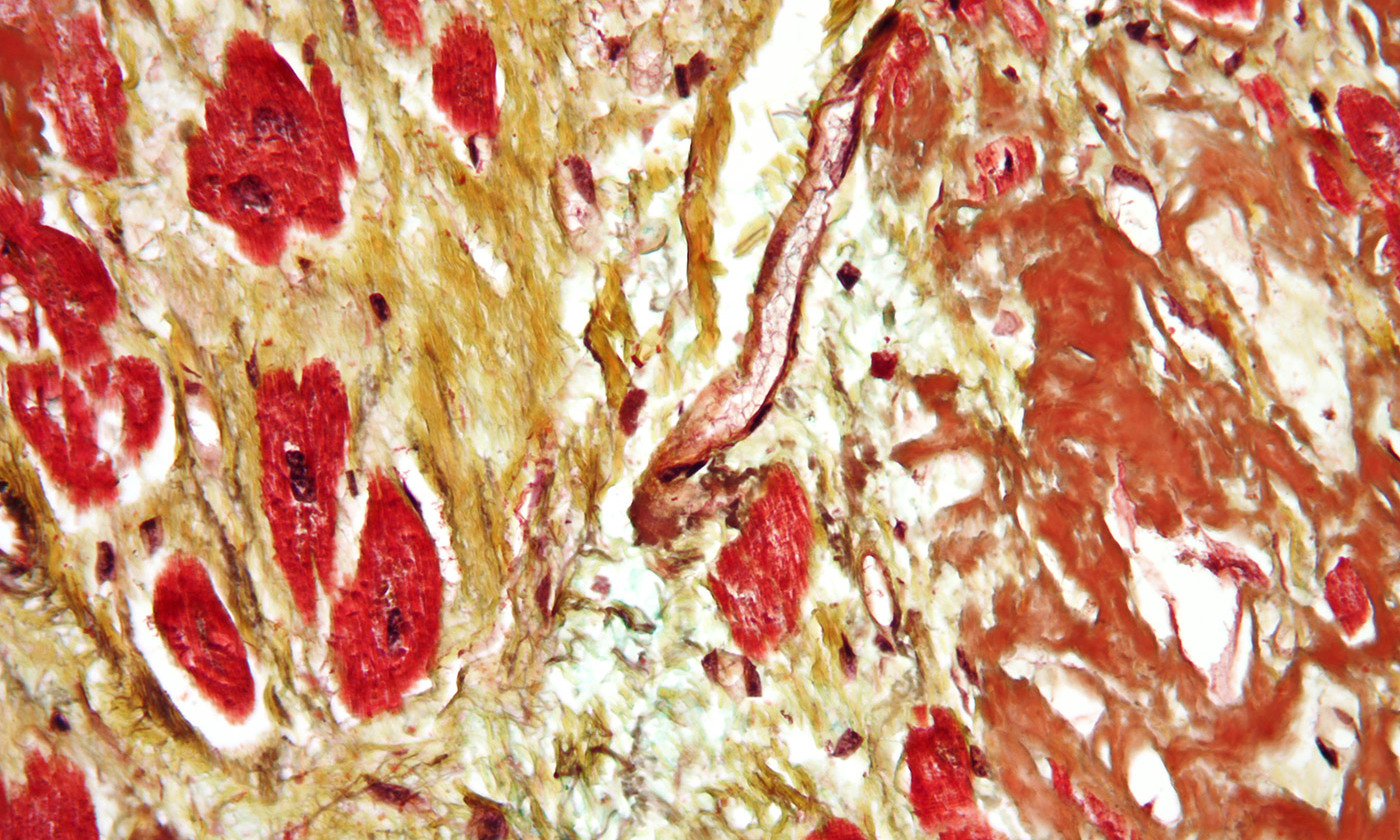 Cardiovascular disease. <em>Photo courtesy Wikipedia</em>