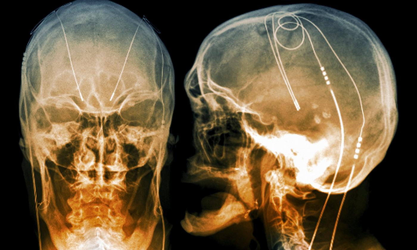 Deep brain stimulation   Aeon