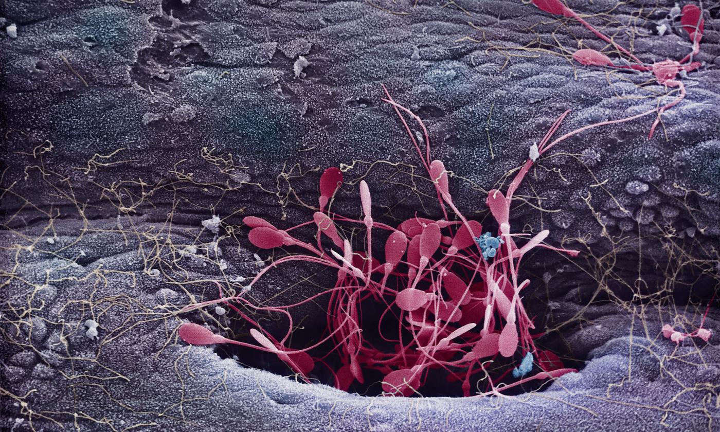 The macho sperm myth   Aeon
